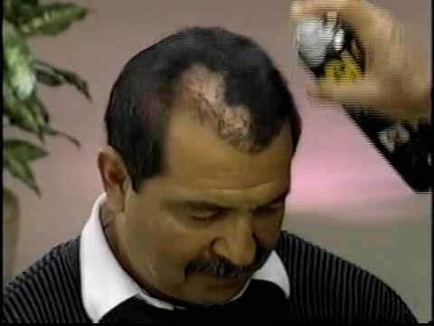 Hair-Growing-Sprays
