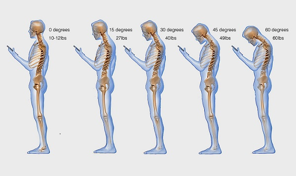 Constant-texting-is-hurting-your-spine-badly